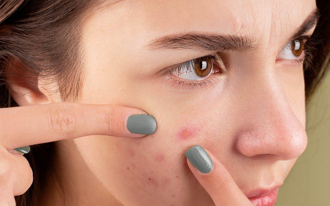 6 Stratégies pour combattre les causes profondes de l'acné